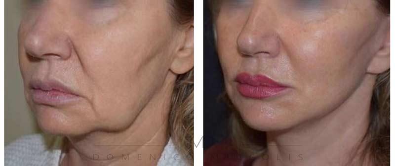 lipofilling-viso-costo-milano-lifting-verticale-facciale-miccolis