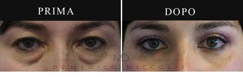 blefaroplastica-rischi-superiore-e-inferiore-dr-miccolis
