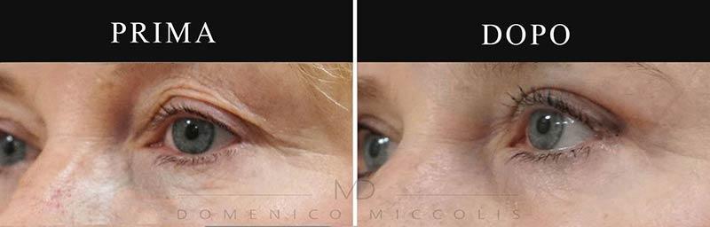 blefaroplastica-superiore-e-inferiore-laser-plexer-foto-prima-e-dopo---Miccolis