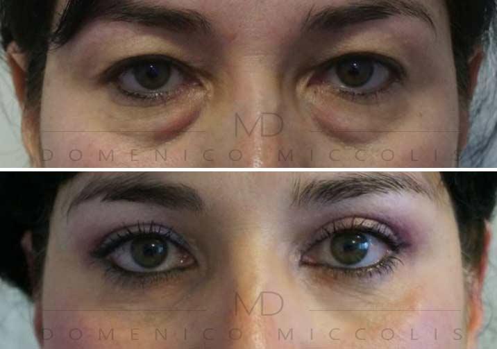 blefaroplastica-superiore-e-inferiore-miccolis-md-milano-verona