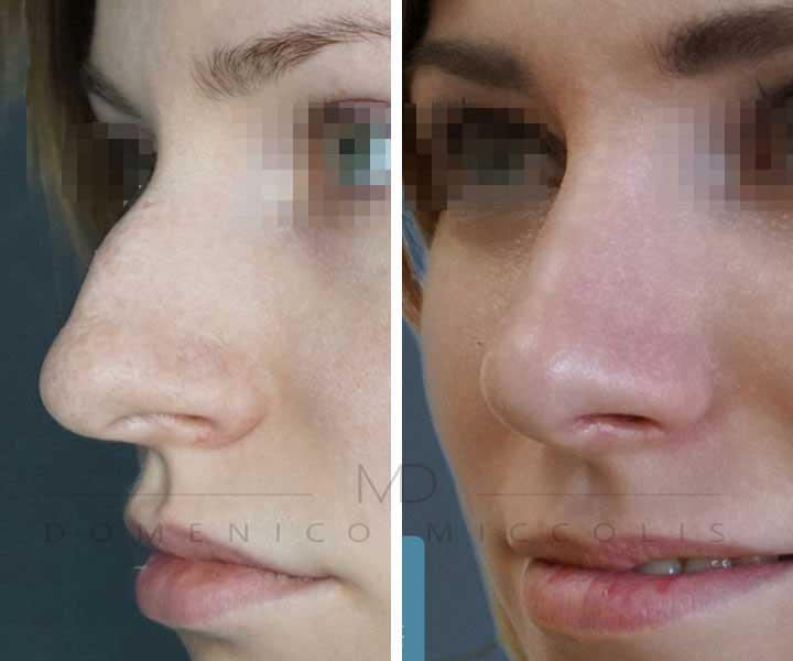rinoplastica naso a patata