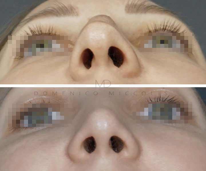 rinoplastica non chirugica permanente milano rinosettoplastica