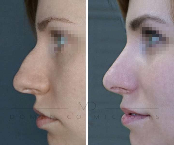 rinoplastica prima e dopo dottor miccolis milano