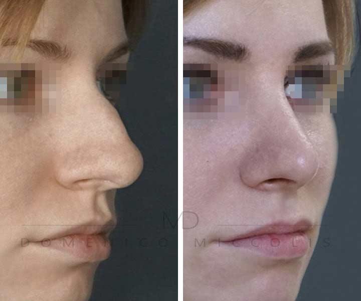 rinoplastica punta del naso secondaria miccolis
