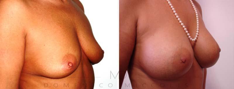 seno-chirurgia-estetica-mastopessi-additiva lifting seno
