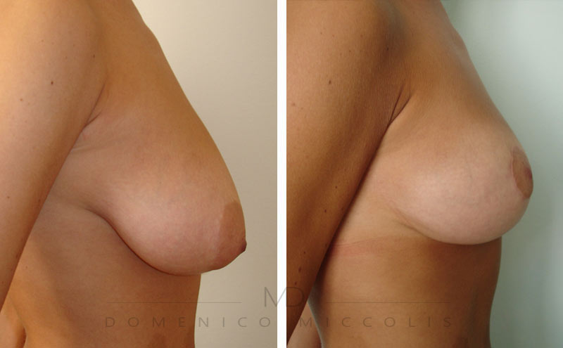 mastopessi lifting del seno