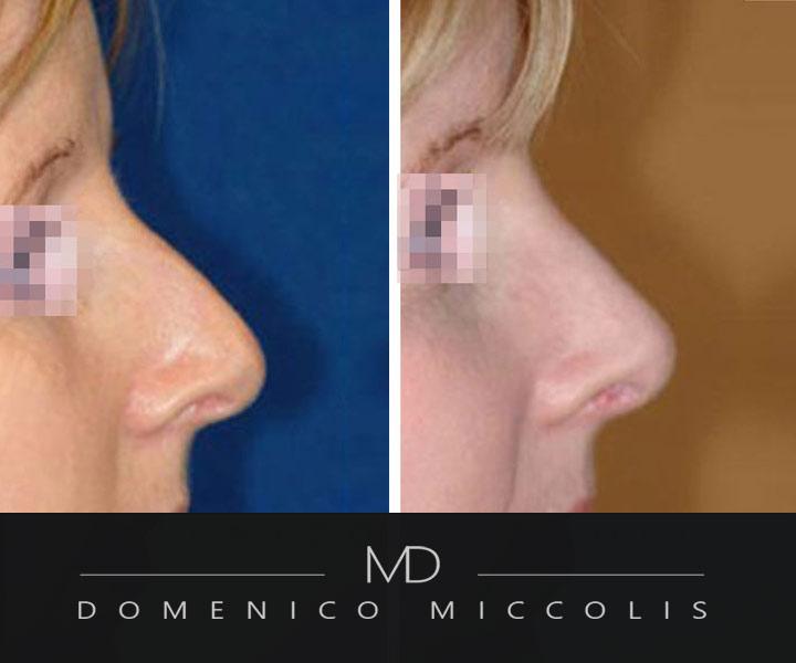 rinoplastica senza tamponi miccolis domenico e chirurigia naso a patata