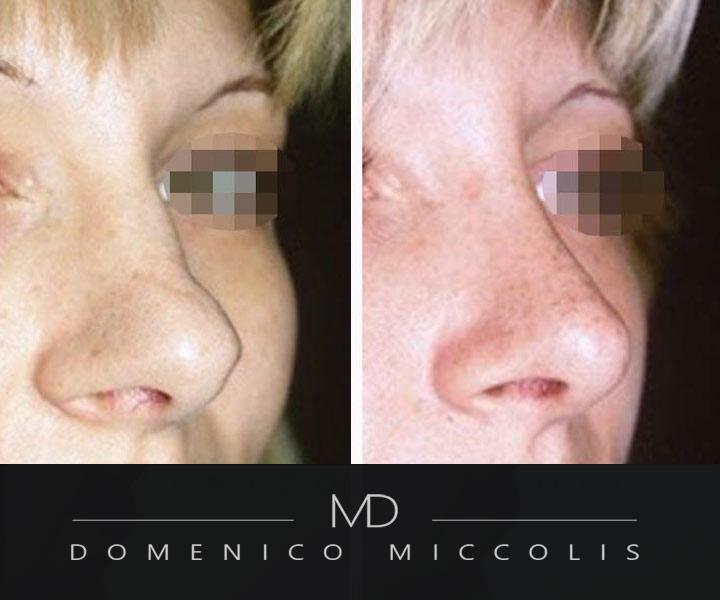 rinoplastica milano parziale naso e punta aperta miccolis