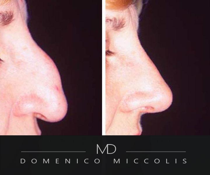 rinoplastica costi prezzi domenico miccolis chirurgia naso grande