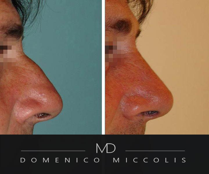 rinoplastica-secondaria-prima-dopo-dottor-miccolis-verona-milano