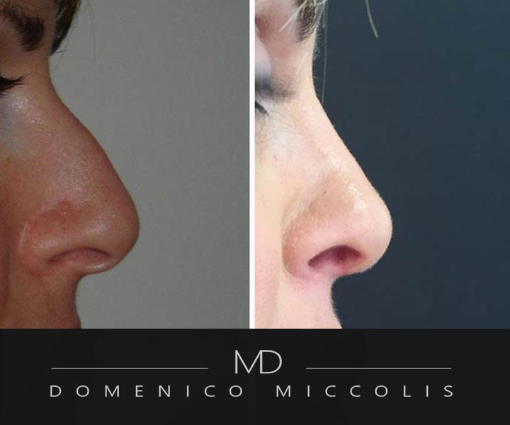 rinoplastica-verona-veneto-costi r chirurgia naso miccolis